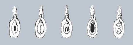 A szűzhártya különböző formái